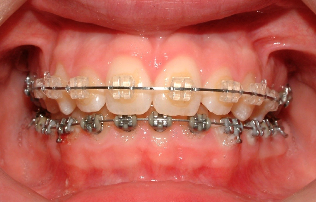 image of ceramic braces