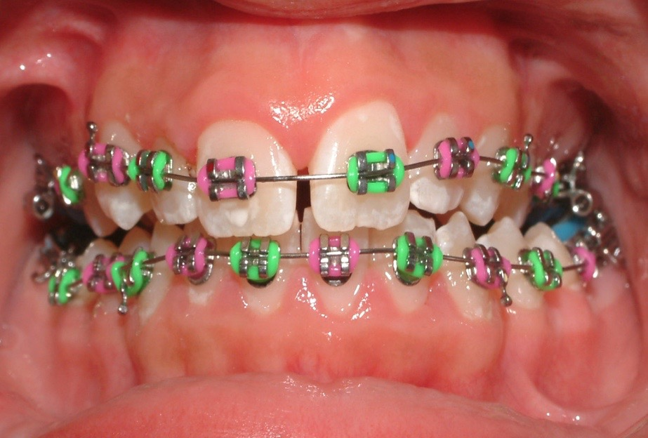 image of multi-coloured braces