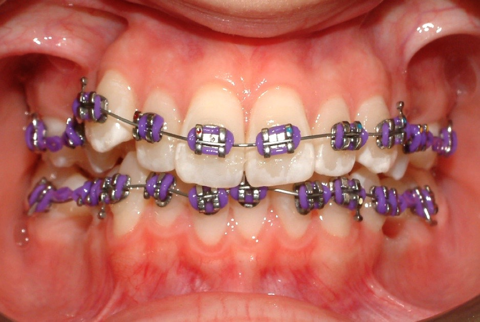 Image of Coloured braces