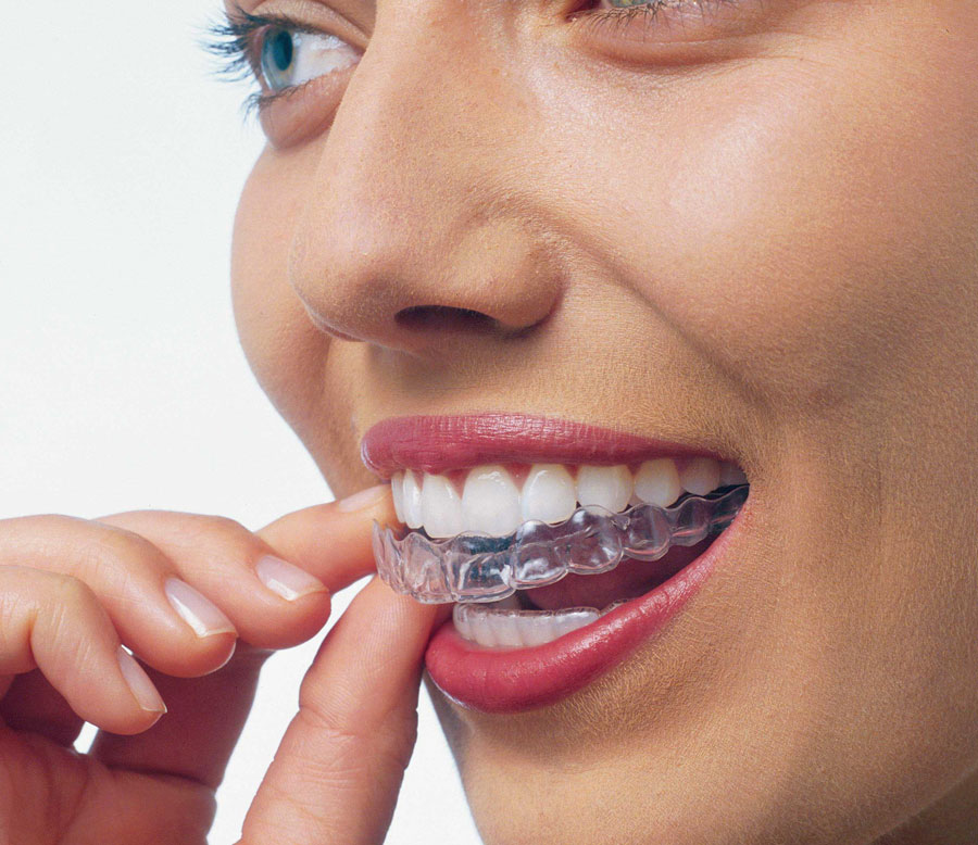 inserting-invisalign4